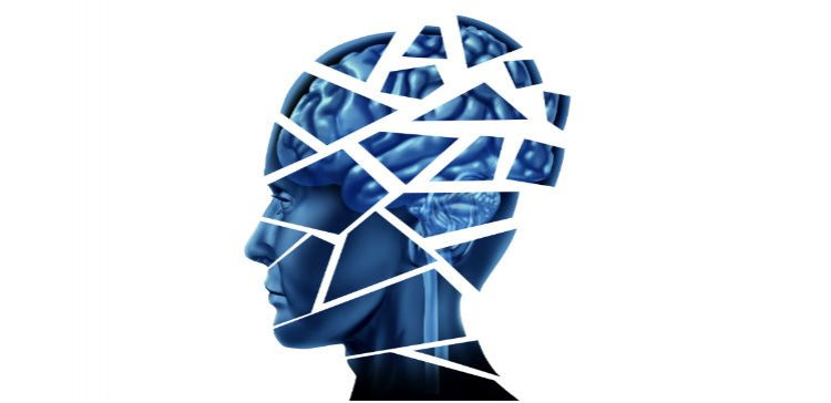 An answer to diagnosing and tracking concussion?