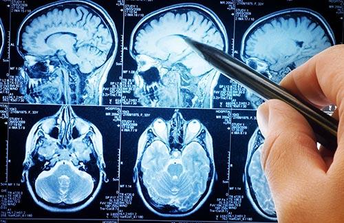 brain-injury-intro-image-1