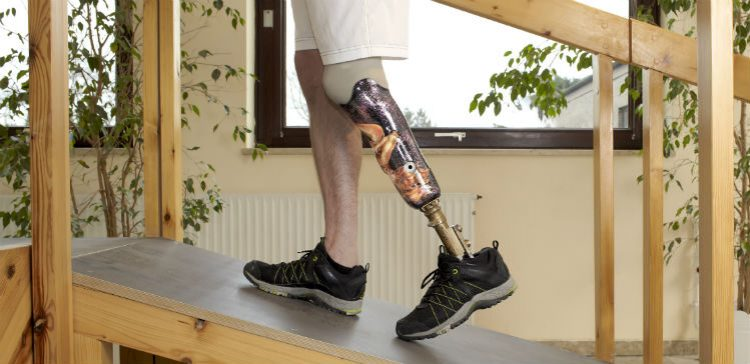 3D printing to be used for prosthetic limbs