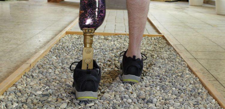 NHS announce funding for advanced prosthetics