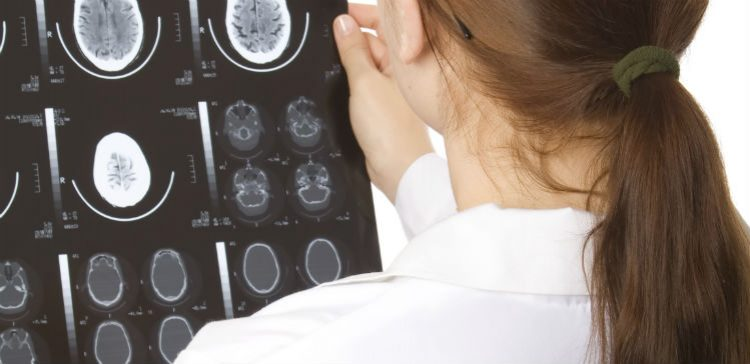 Important information about brain injuries