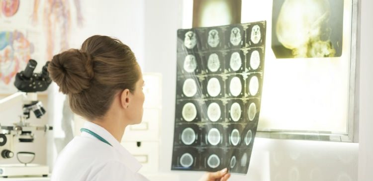8 myths about Traumatic Brain Injury